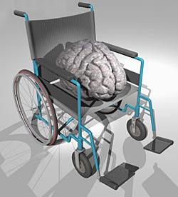 Санатории мозговое кровообращение