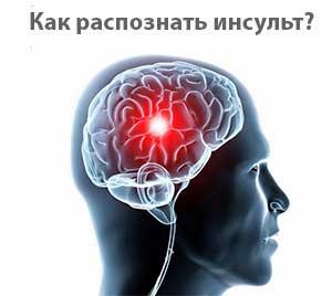 Каковы основные признаки инсульта